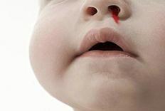 抬头望天没有用,止鼻血的正确姿势是这样的